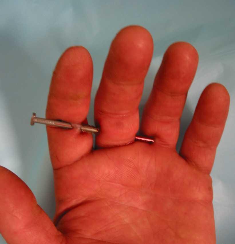 Nail Gun Injuries (GRAPHIC) - SAFTENG